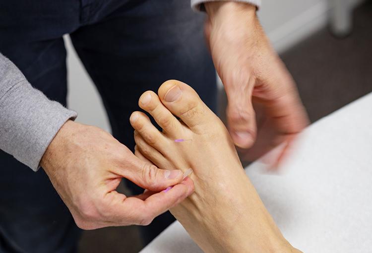 Osteo-acupunctuur